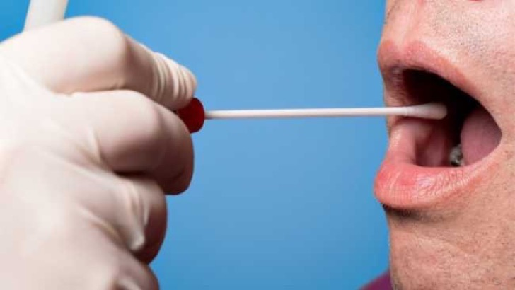 large-1464384986-1330-new-saliva-test-may-be-able-to-detect-cancer-in-just-10-minutes